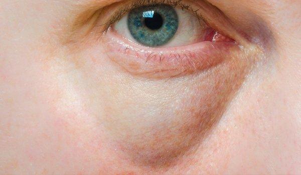 eyebags