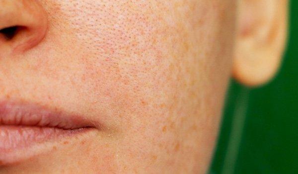 open pores