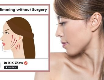 Face Slimming without surgery at NUU Aesthetic Clinic