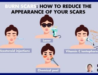 How to reduce the appearance of scars at NUU Aesthetic Clinic